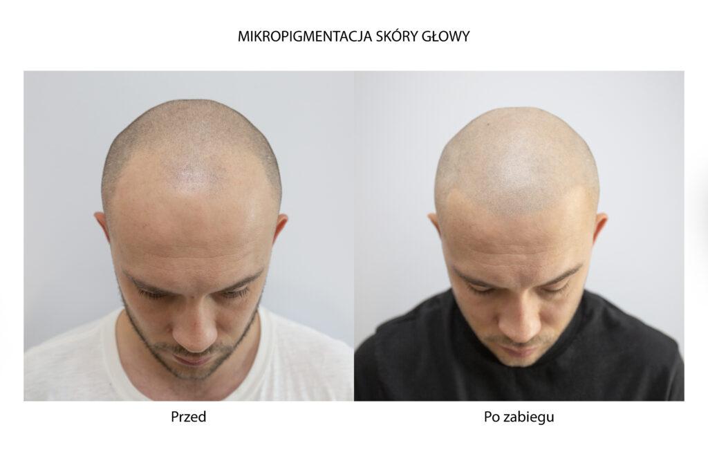 Efekty po mikropigmentacji